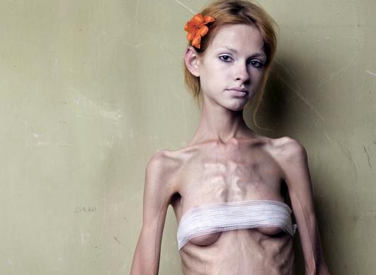 Anoressia: quando il corpo esprime l'infelicità